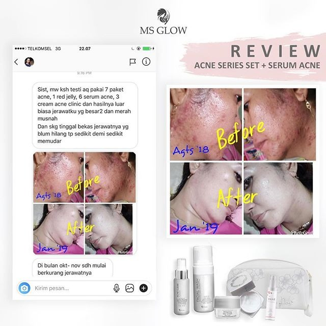 Review Acne MS Glow